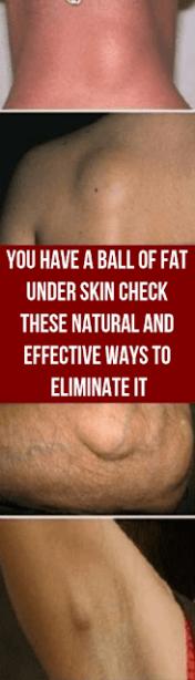 f4ff705b6e93b3a5b172bb9fb59ab6e8 - How To Get Rid Of A Benign Tumor Naturally