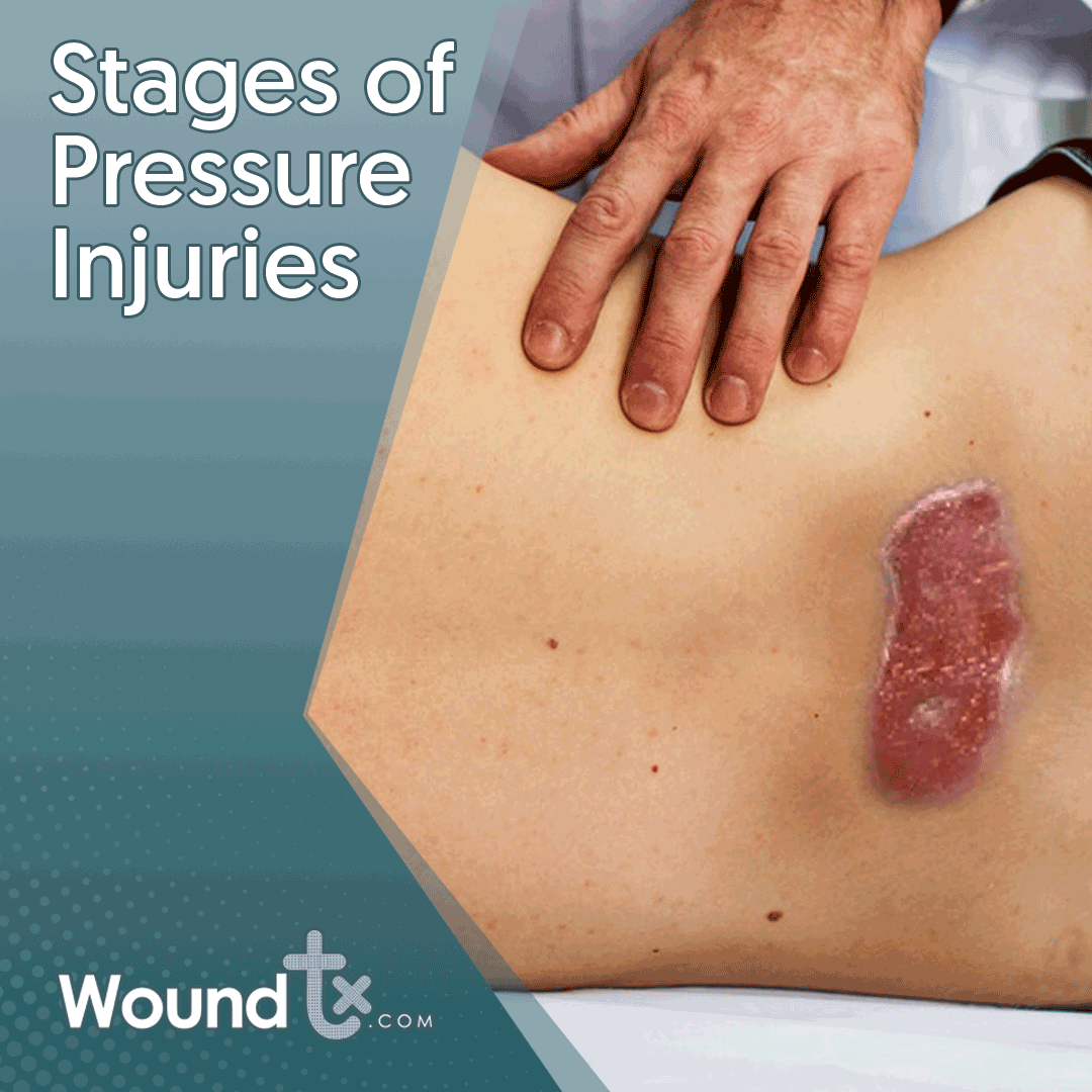 Stages Of Pressure Injuries Stage 1 The Skin May Be Painful To The Touch But It Has No Breaks Or Tears The Skin Reddens And Does Soreness Ulcers Pressure