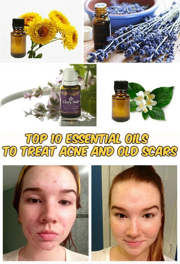 How To Get Rid Of Acne Scars With Essential Oils