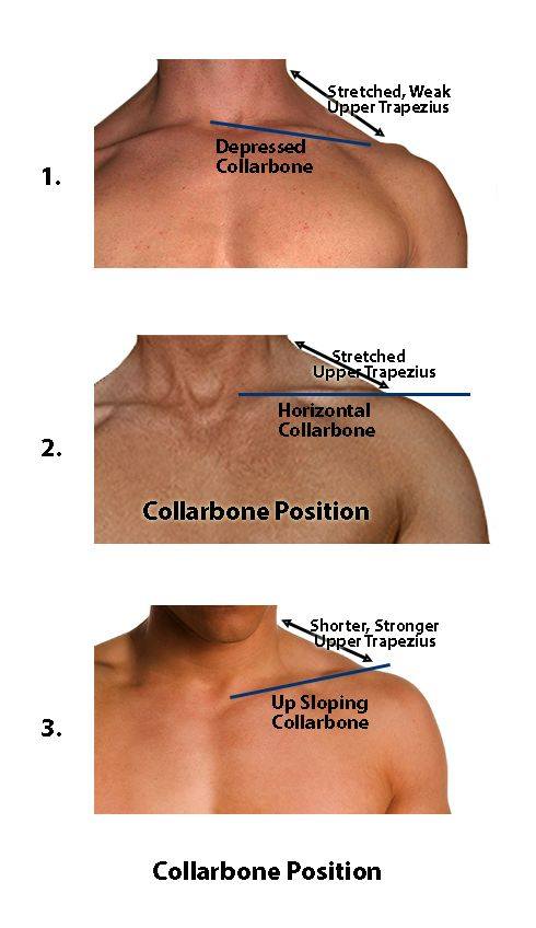Chronic neck and shoulder pain relief