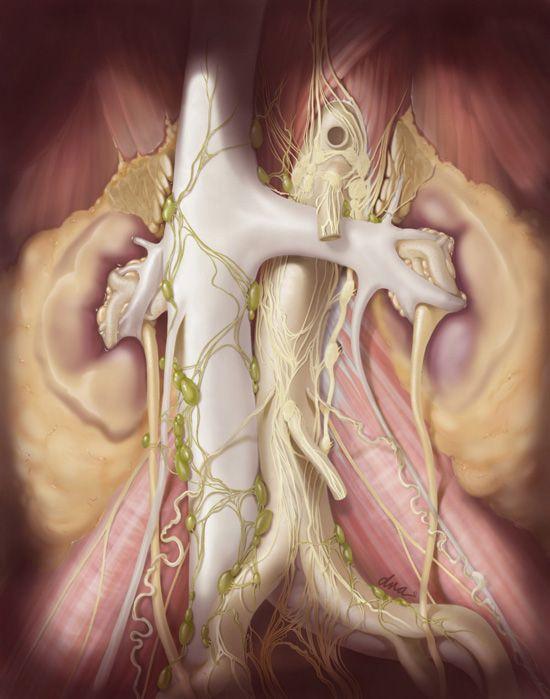 Retroperitoneal Lymph Node Dissection Alexandra Baker