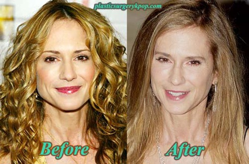 Holly Hunter Plastic Surgery Before After Facelift and Botox