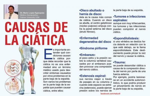Terapia para la ciatica