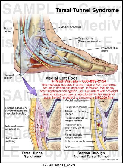 tarsal tunnel syndrome - Google Search | Injury ... Tarsal