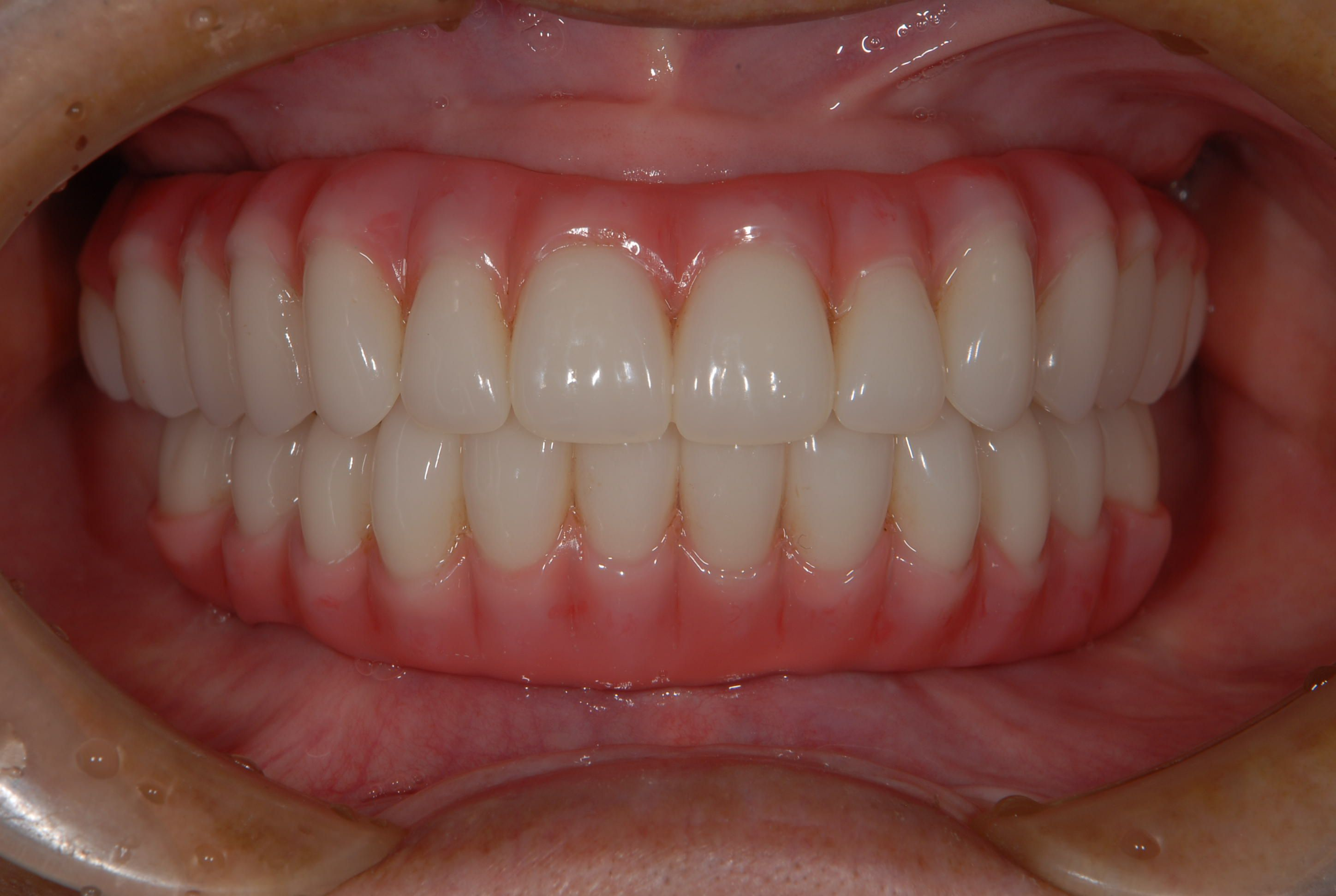 About Implant-Supported Overdenture - Cost Procedure ...