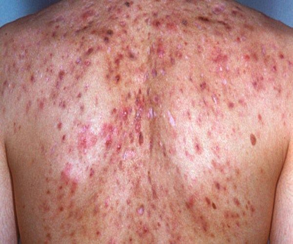 """ff30703f17c8f How to Get Rid of Back Acne Back acne is also popularly known as """"Bacne"""".  Like facial acne, back acne is also caused by the clogging of the pores."""