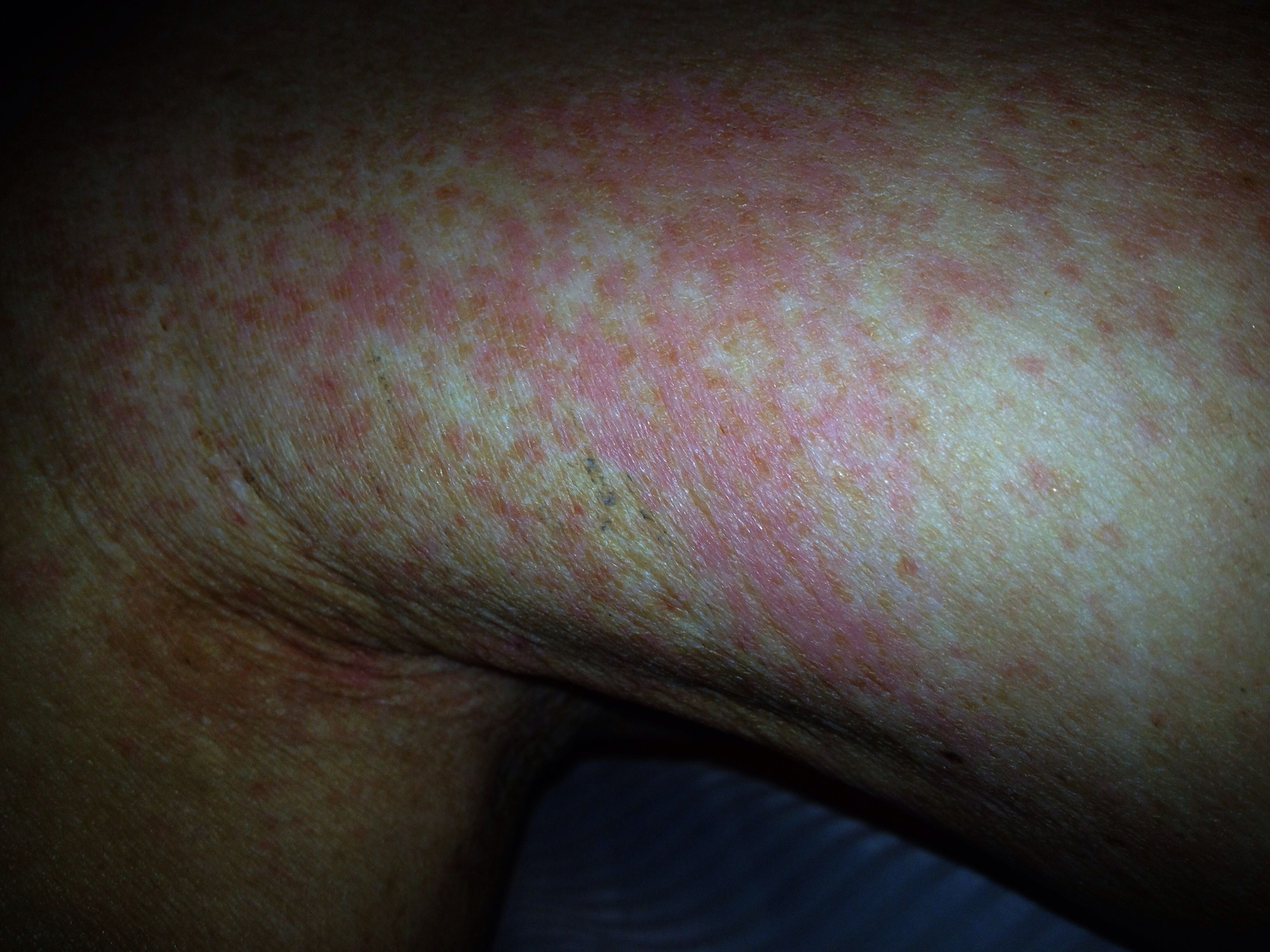 Scabies Rash Information and Guide - Healthy-Skin-Guide.com