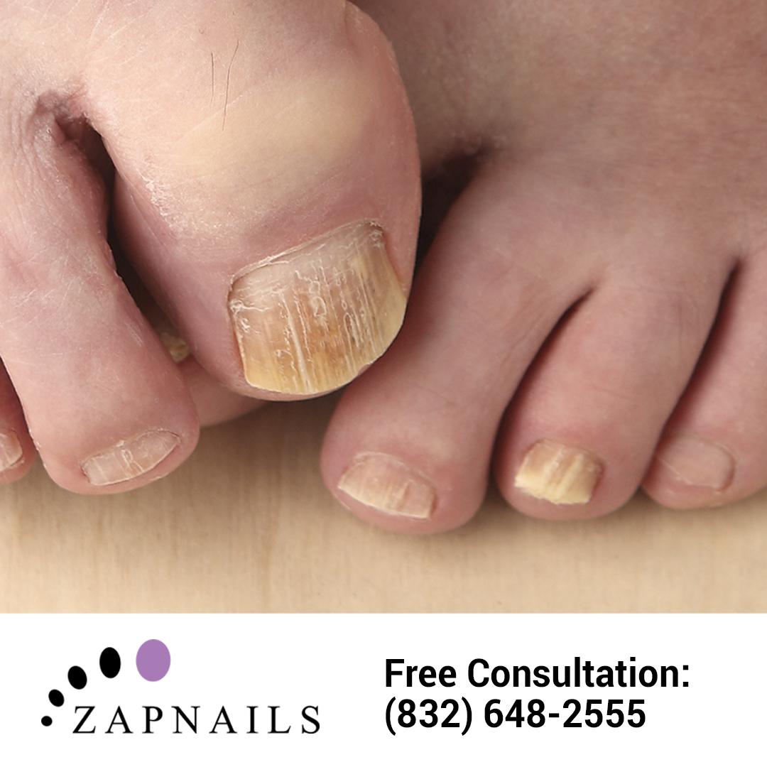 Fungal toenails looking a #HotMess? Zap \'em! (832) 500-5630 ...