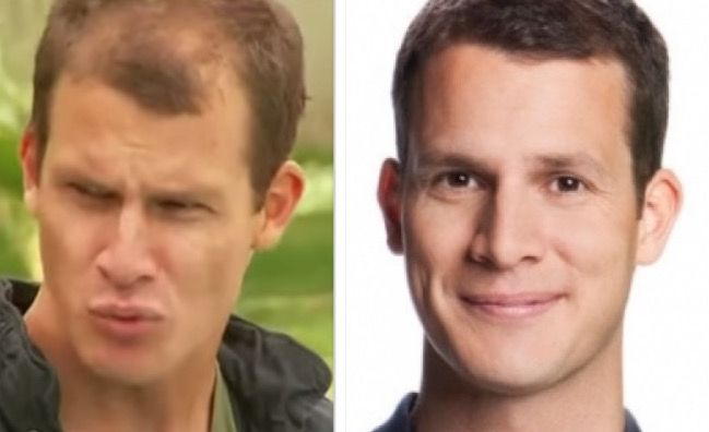 Daniel Tosh Hair Transplant Before And After Celebrity Hair