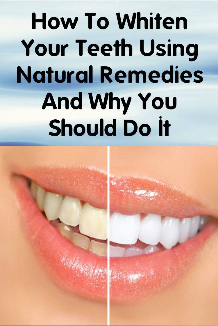 How To Whiten Your Teeth Using Natural Remedies And Why