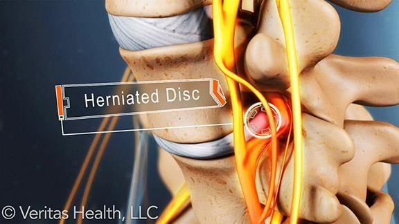 disc herniation exercises - photo #28