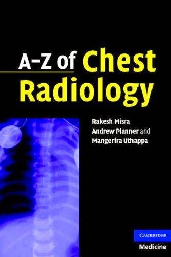 A Z Of Chest Radiology Pdf Free Pdf Epub Medical Books Medical Textbooks Radiology Medicine Book