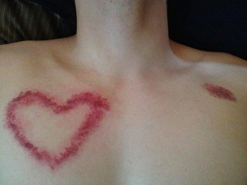 Hickeys on chest