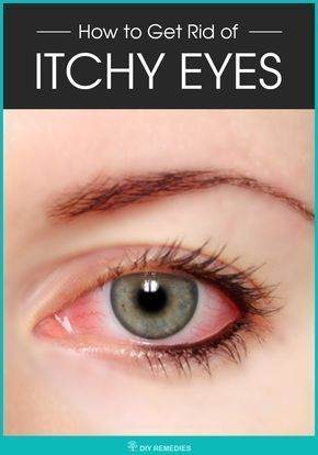 itchy burning eyes home remedy