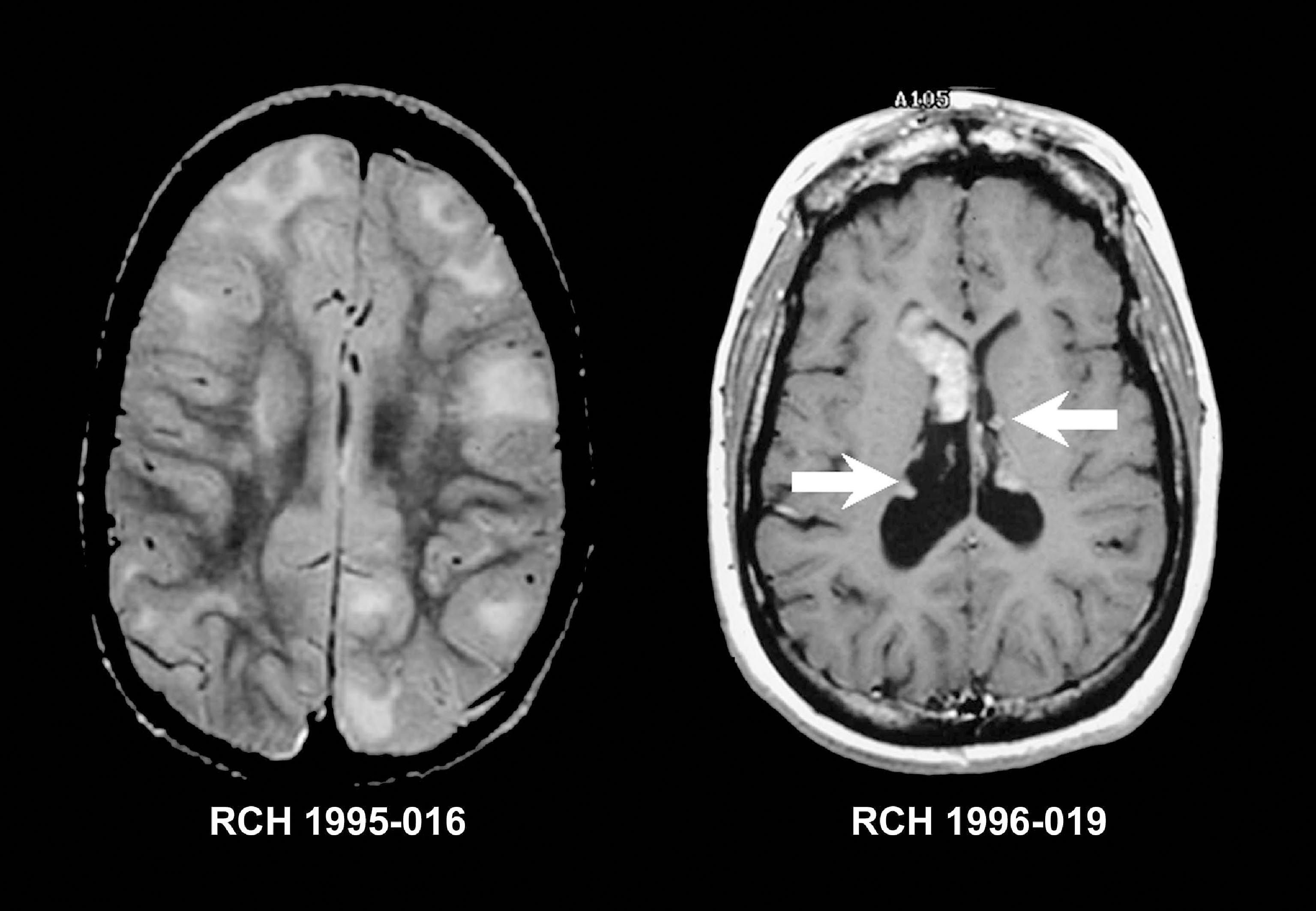 BrainMriWithContrastShowingmsimages Mri Scans