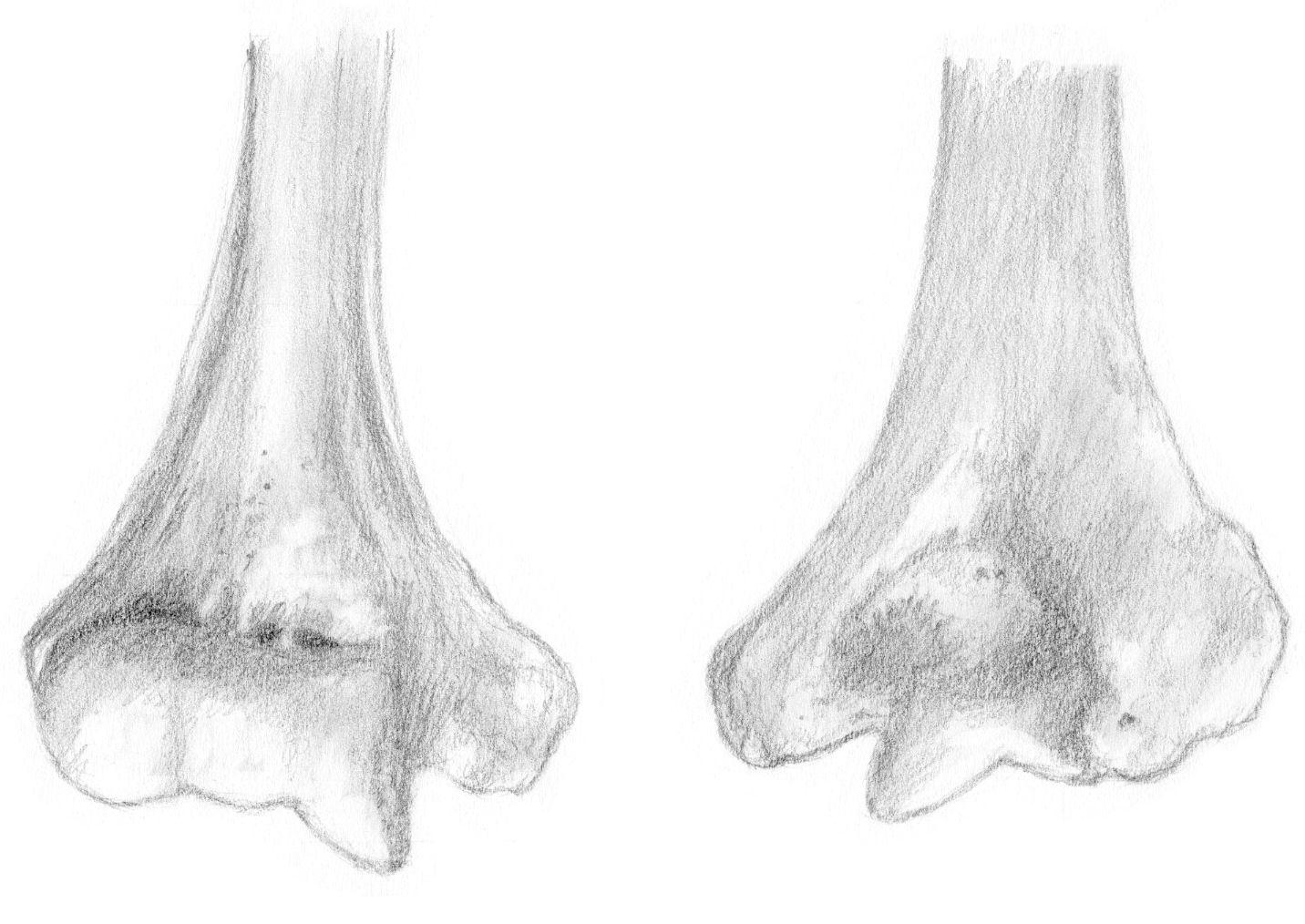 Dessin pour le sujet sur les fractures de la palette humérale ...