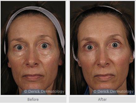Before/after JUVÉDERM® | Juvederm eyes | JUVÉDERM
