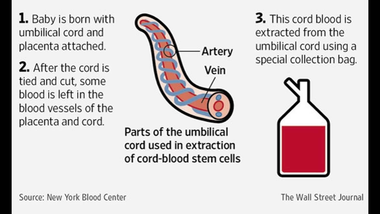 Cord Blood Banking Cost >> Cord Blood Banking Cord Blood Banking Cost How It Works