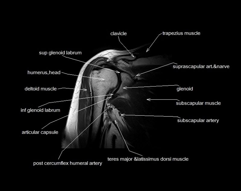 Mri Shoulder Anatomy Shoulder Coronal Anatomy Free Cross