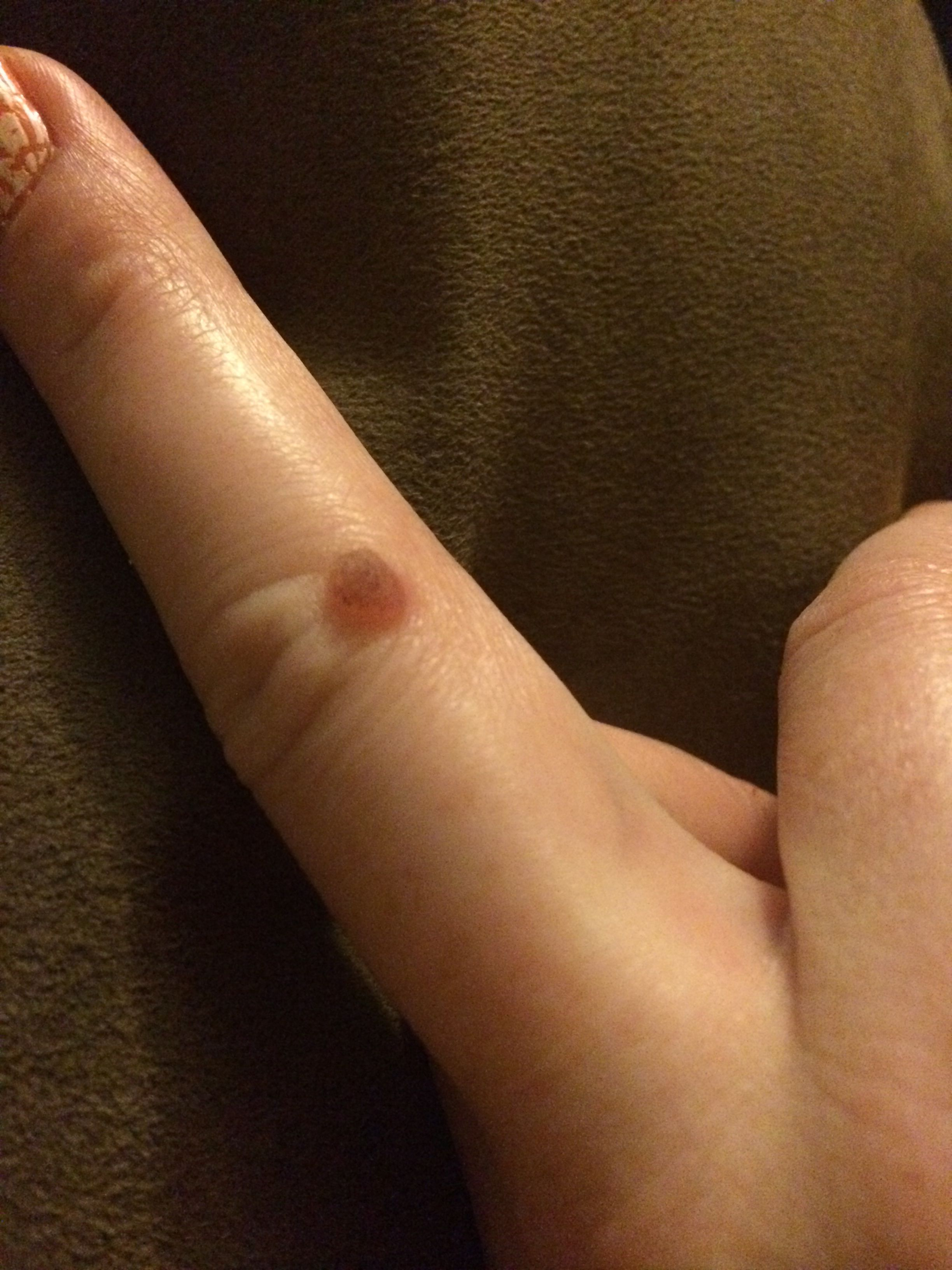 I've tried to burn my wart off THREE times     Nothing  Duct