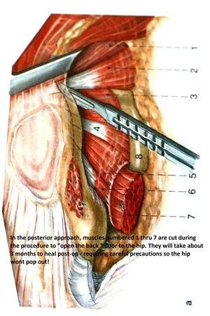 Read This To Learn About Anterior Hip Replacement Precautions Hip Replacement Hip Replacement Recovery Total Hip Replacement