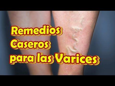 Marathi en varicosas venas causas