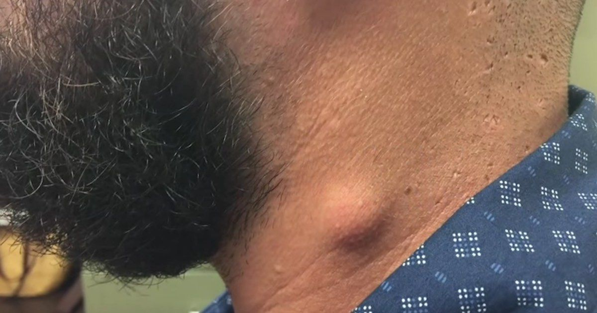 Dr  Pimple Popper squeezes out a perfect untouched cyst on a dude's