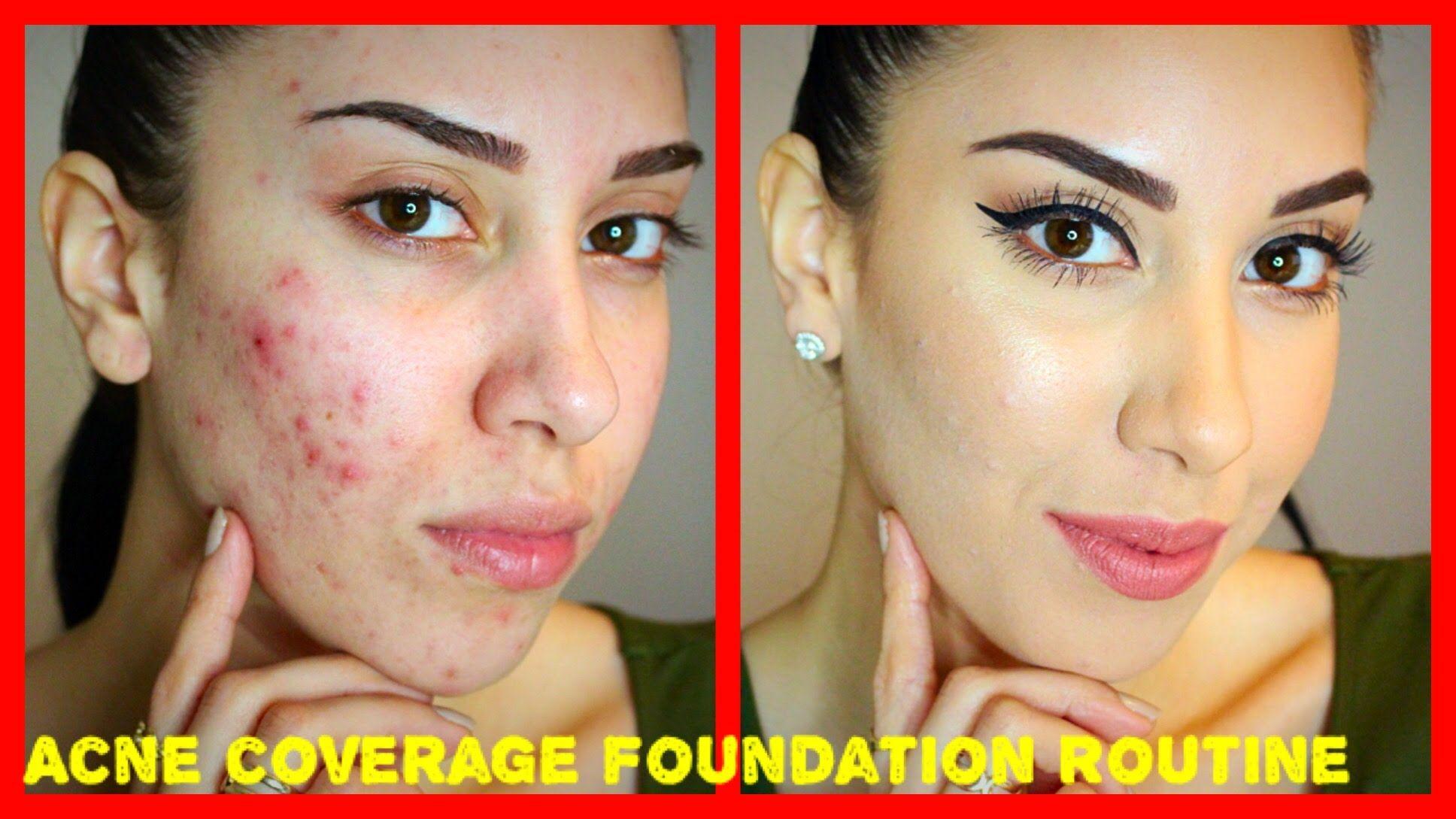 Acne Coverage Foundation Routine Pre Accutane Drugstore Products Acne Coverage Foundation Routine Acne Coverage Makeup