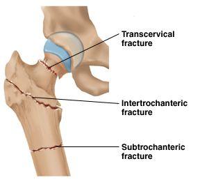 Understanding Hip Fractures | Resurgens Orthopaedics | Orthopaedic ...