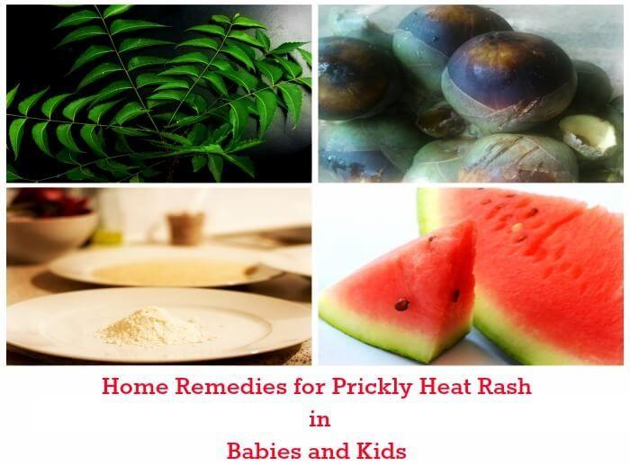 f54ce41a49f7673bb40e196ea0efacae - How To Get Rid Of Prickly Heat Rash On Baby