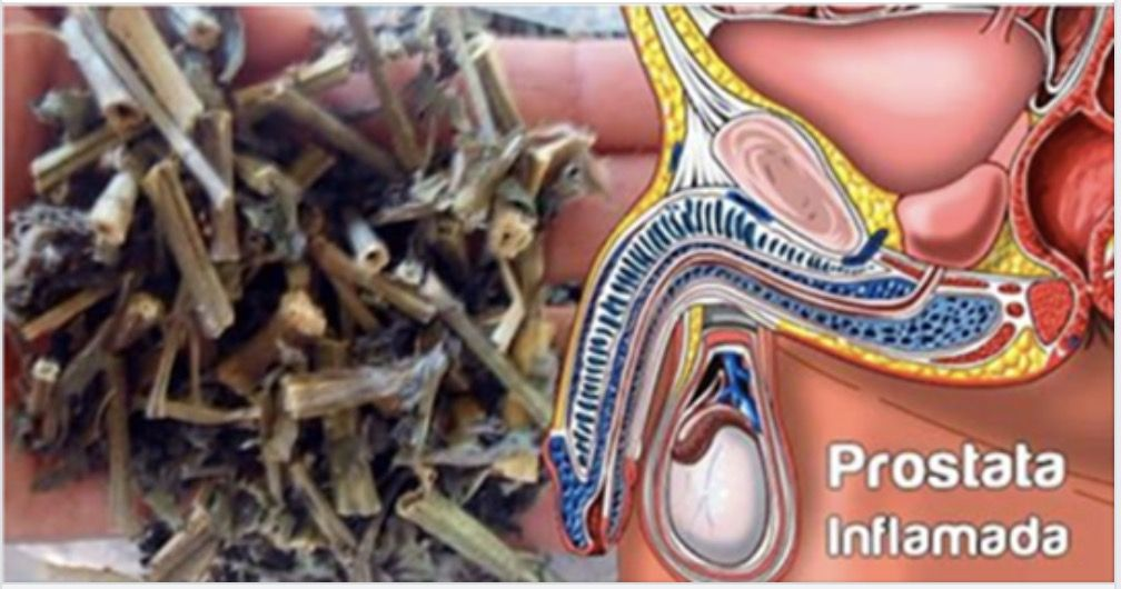 infertilidad prostática inflamada icd 10