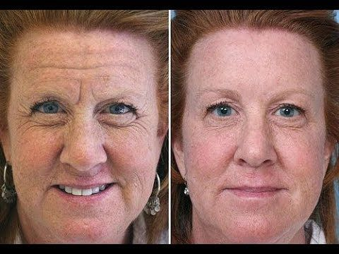 f55ad80a1edb46a34dcc3f4845d2f98d - How To Get Rid Of A Crease On Your Nose