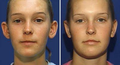 foto antes e depois cirurgia de orelha de abano