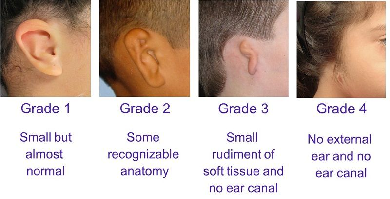 Microtia Ear Surgery And Bone Anchored Hearing Devices Sheryl Lewin Surgery Middle Ear Ear