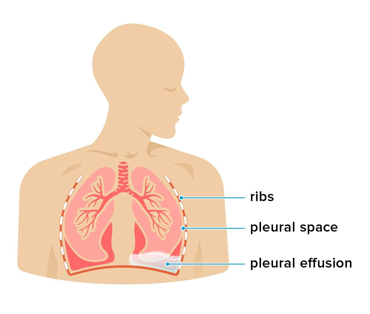 Fluid In The Chest Pleural Effusion Fluid In Lungs Cancer Info
