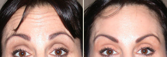 Glabella and Forehead BOTOX Cosmetic (50 units). Patient