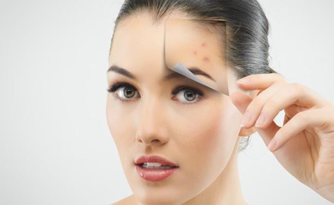How to get rid of zit fast