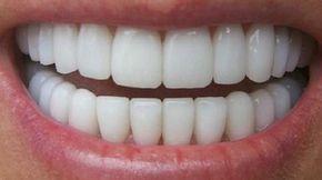 Il n'y a pas que les stars qui ont le droit d'avoir les dents bien blanches. Il existe heureusement des recettes naturelles pour avoir les dents blanches. Avec ces remèdes, vous aurez les den