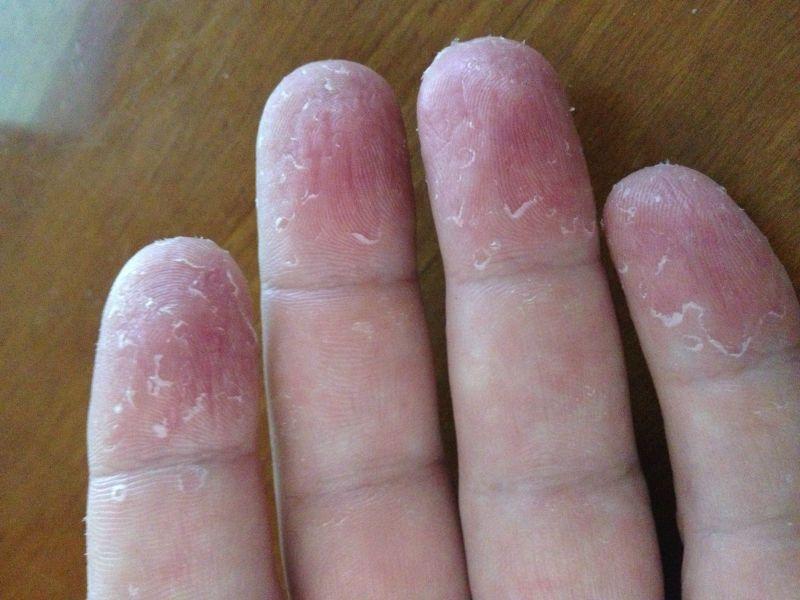 Lawd !!!! latex glove hand rash cure her name??