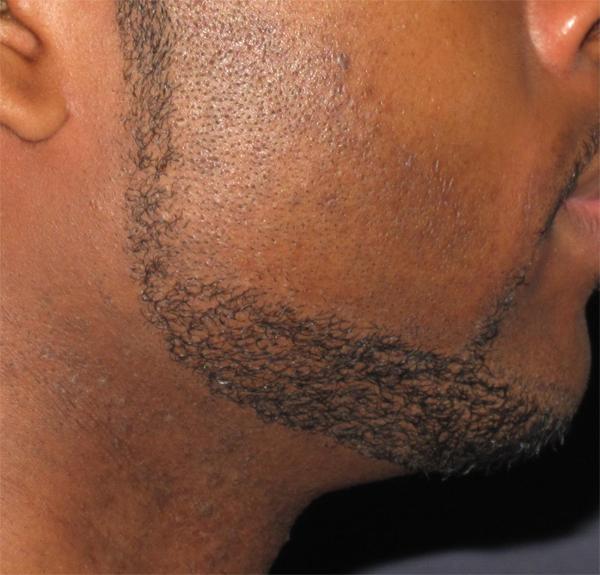 Ingrown Facial Hair Bumps 29