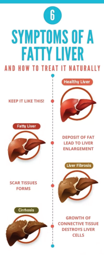 Your Vital Liver