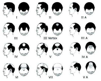 Norwood Hamilton Scale Of Male Pattern Baldness Hair Remedies For Growth Hair Loss Cure Hair Loss Remedies