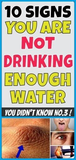 10 SIGNS YOU ARE NOT DRINKING ENOUGH WATER – Fitness Viralhoba - #drinking #enough #fitness #signs #...