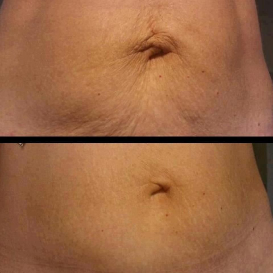 NeriumAD - Stretch Marks Before & After #ChooseYouth | How ...