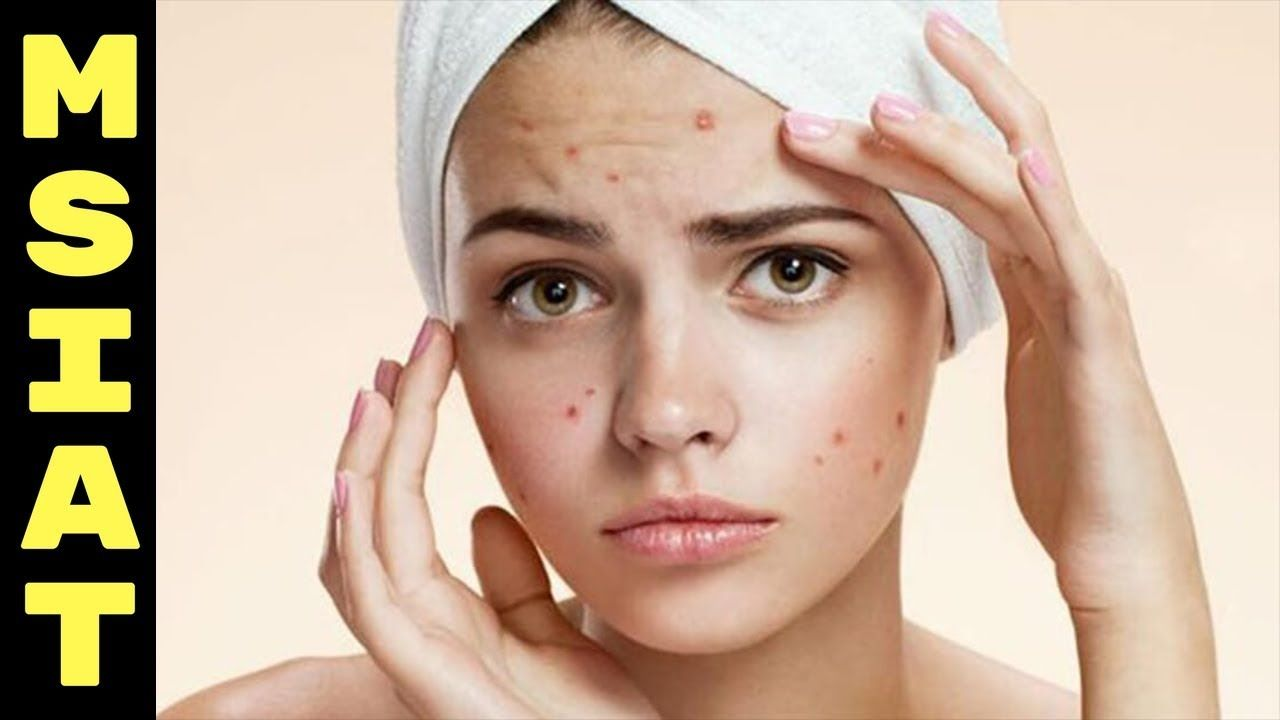 Folk remedy for acne at home 33