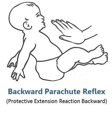 backward parachute reflex protective extension reaction