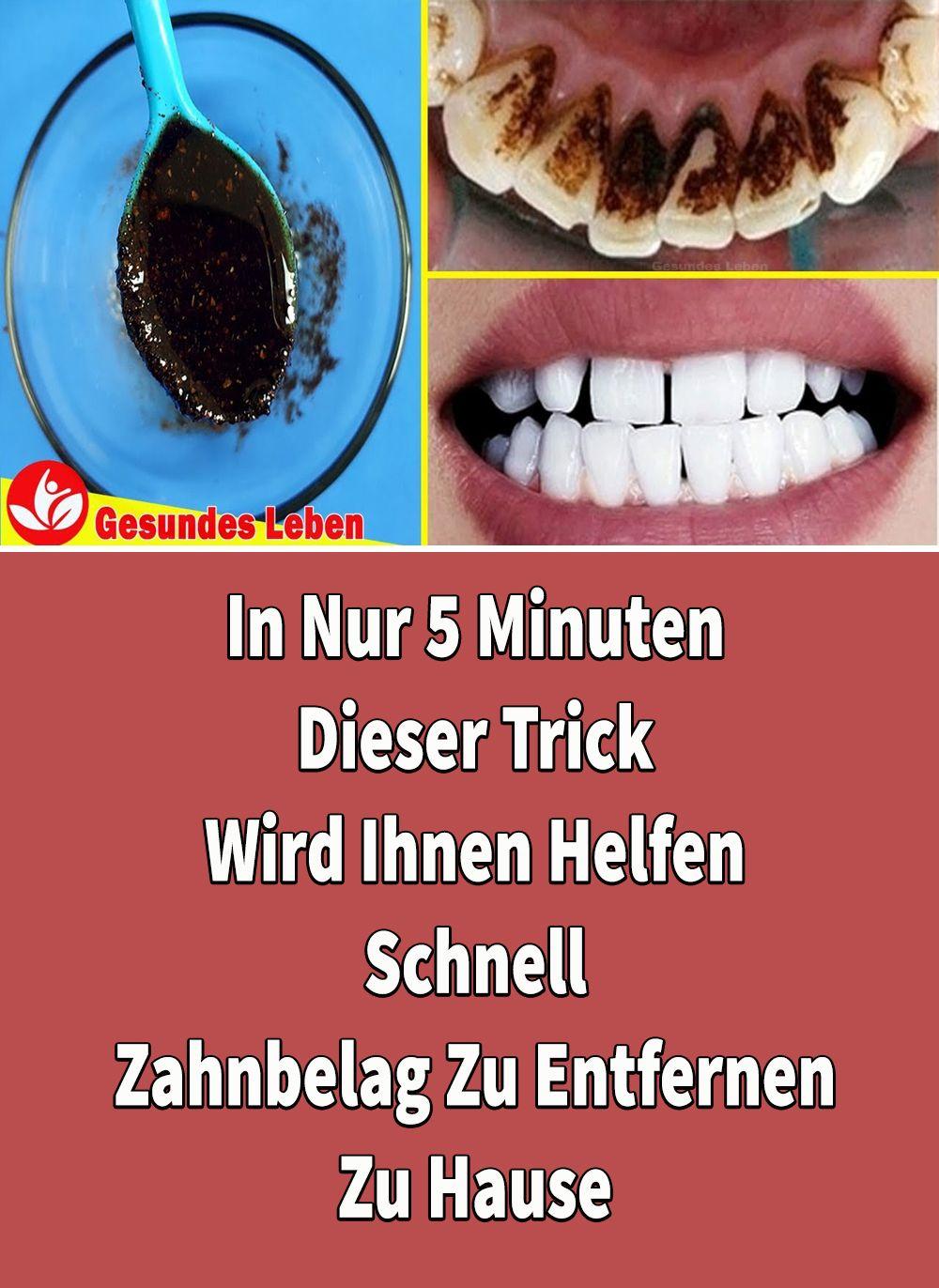 In Nur 5 Minuten - Dieser Trick Wird Ihnen Helfen, Zu Hause Schnell Zahnbelag Zu Entfernen #applecidervinegarbenefits
