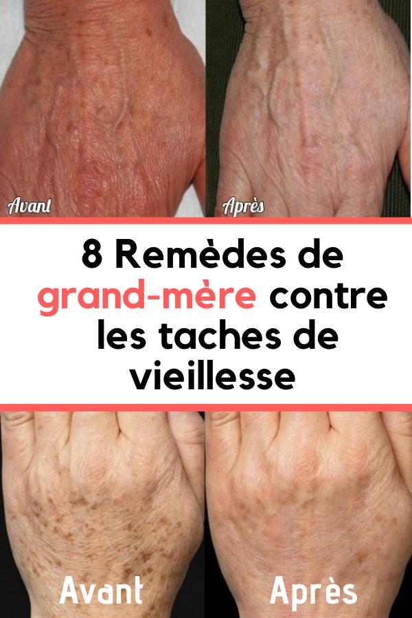 Tache De Vieillesse Remede De Grand Mere : tache, vieillesse, remede, grand, Astuces, être, Belle, Temps