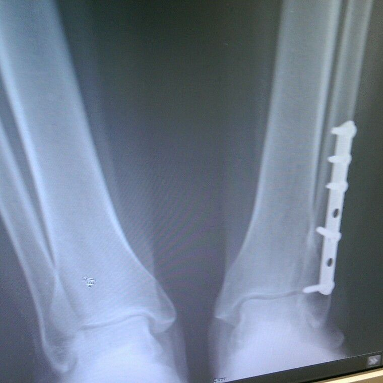 Broken left ankle due to slip and fall job related plate
