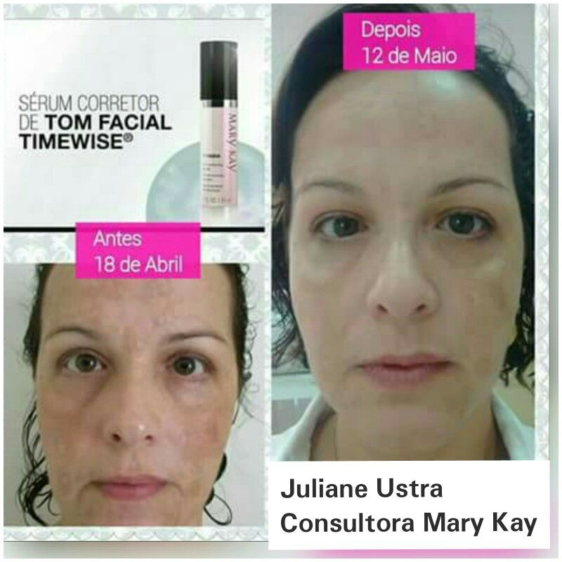 Pin De Sharon Nale Siri Em Mk Before And After Mary Kay